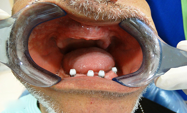 antes_implantes